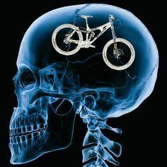 Rendszeres testmozgás emeli az agy teljesítő képességét